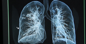 Producing Lung Healing Solutions