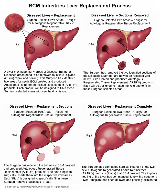 BCM Liver Replacement Process Illistrati