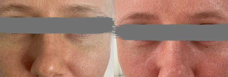 Before and After Straight after a RF Microneedling treatment.