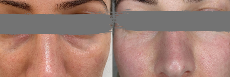 Before and After 2 x treatments