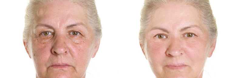 Fraxel before and after  2 treatments  & 1 x Thermage