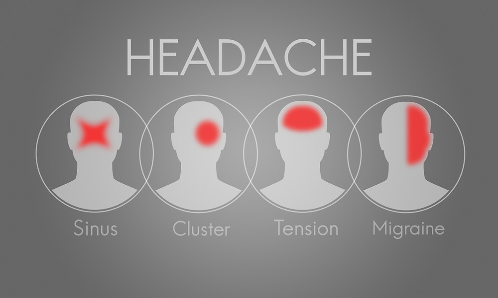 A diagram showing the differences in location in the head of sinus, cluster, tension, and migraine headaches