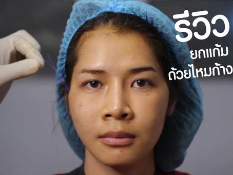 ร้อยไหมก้างปลา ดึงยกแก้มด้วยไหมก้างปลา ดึงหน้าโดยไม่ต้องผ่าตัด แก้ปัญหาแก้มหย่อนคล้อยเห็นผลทันที
