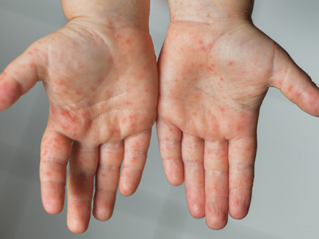 Sarampo: quais sintomas, como prevenir e tratar.