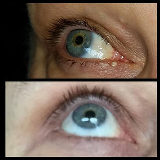 Treatment Results