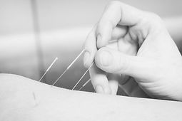 Acupuncture from Silverstone Soft Tissue Therapy