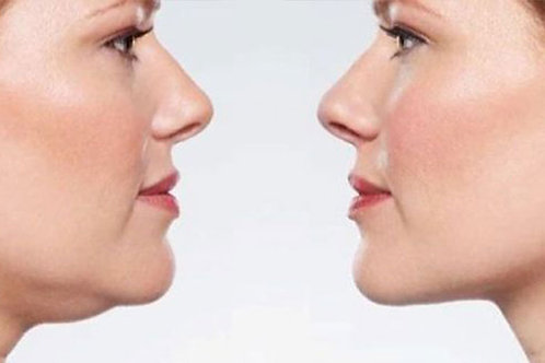 Happy Chin - Instant Chin and Necklift Tabs
