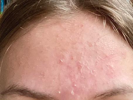 Quarantine Skin - The Struggle of 2020