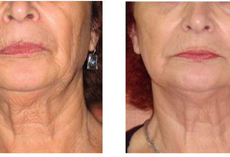 Have you heard about the power of ENDYMED Skin Tightening?
