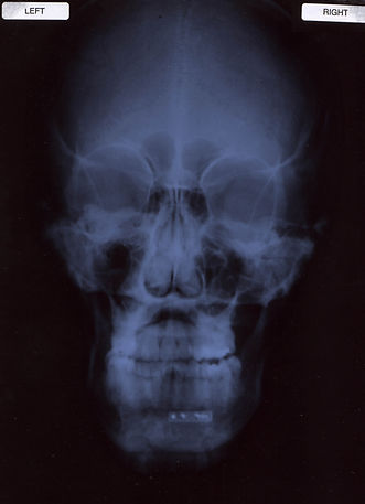 face x-ray cropped.jpg