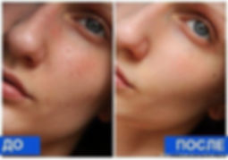 Le'Ra салон, омоложение, RF-лифтинг, косметология, selvert thermal, процедура омоложения