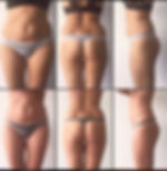 результат процедура R-SLEEK, r-sleek в Москве, массаж аппаратный, аппаратная коррекция фигуры, R-SLEEK на Нахимовском, Le'Ra