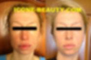 омоложение в Le'Ra, массаж лица icoone, процедура icoone для лица, аппаратная косметология в ЮЗАО