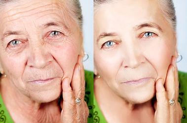 идеально лицо, омложние,минус 10 лет, убрать орщины, аппаратная коррекция лица, подтяжка лица, косметология на Нахимовском