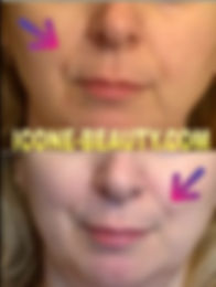icoone массаж для лица, icoone для лица, массаж лица аппаратный, icoone на Профсоюзной