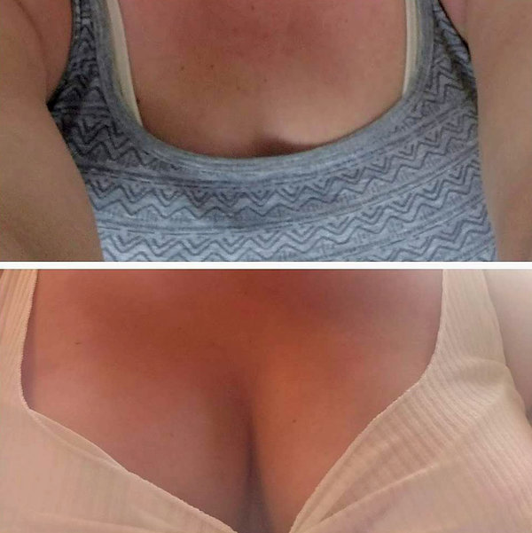 Non Surgical boob lifts