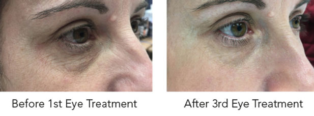 hydrafacial eye perk example