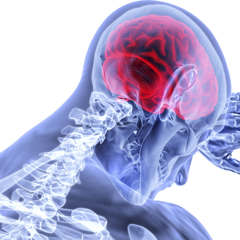 Neuroinflammation and Post-Viral Long-Haulers
