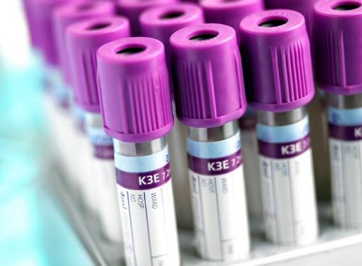 Testing, Testing 1, 2, 3: Functional Blood Chemistry