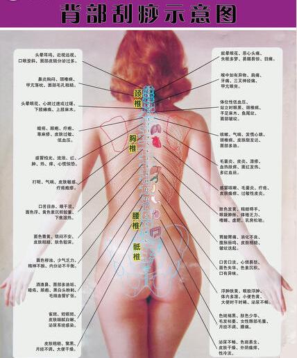 背部刮痧示意图.png