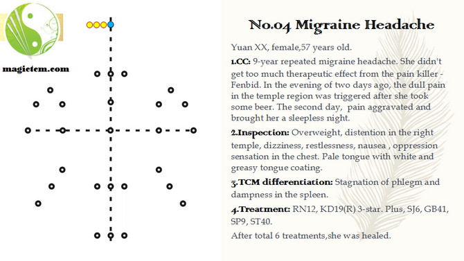 No. 04 Migraine Headache.