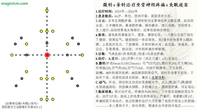 No.12 坐骨神经疼痛 + 失眠 (Sciatica + Insomnia)