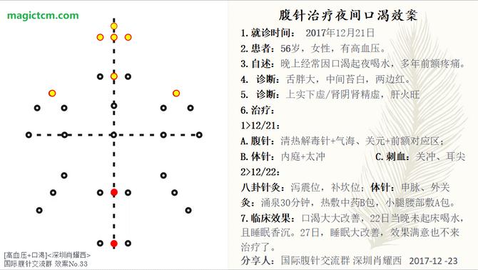 No.33 夜间口渴(Thirsty at Night)