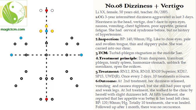 No.08 Dizziness and Vertigo