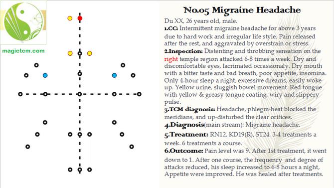 No. 05 Migraine Headache