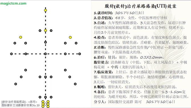 No. 19 尿路感染 (UTI)