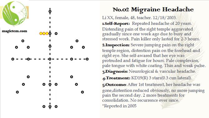 No. 02 Migraine Headache.