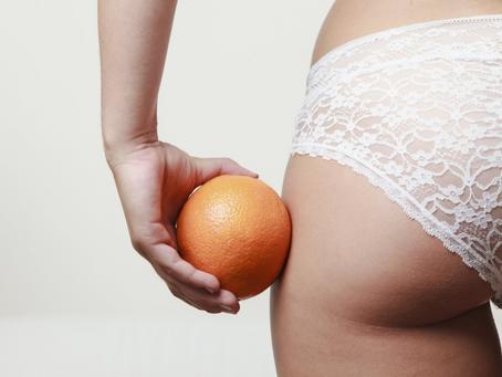 La cellulite: una finta malattia