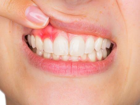 Gengivite: come riconoscerla ed evitare che evolva in parodontite