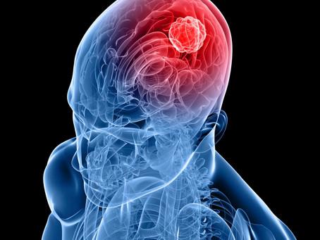 Glioblastoma: conoscere oggi per curare domani