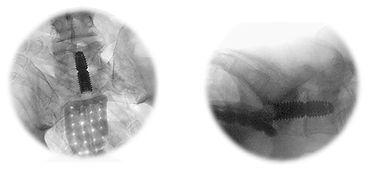 intervertebral-disc-herniation01.jpg