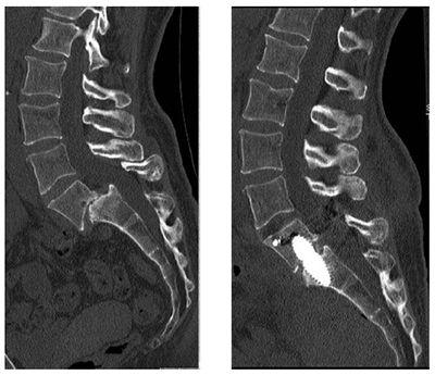 intervertebral-disc-herniation04.jpg