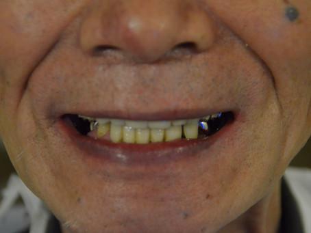 たまには一般歯科