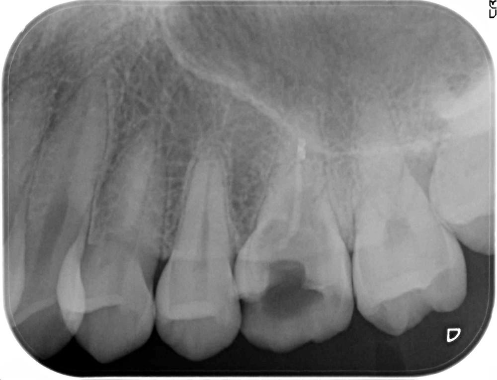 朽ちていく根っこの図 こうなったら安定して機能する歯を再建するのは無理なの