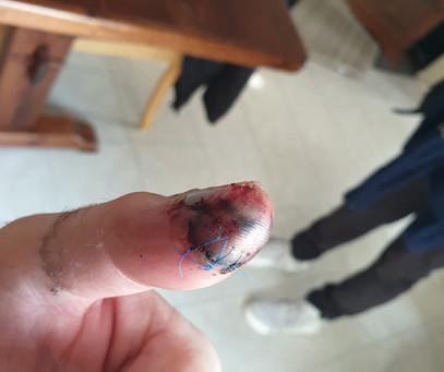 Crushed Thumb.