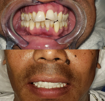 $22,000 full mouth dental implants by Dr. Beck the Periodontist. In Houston