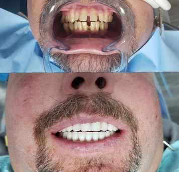 Before and after..By Dr. Beck the Periodontist Full mouth dental implants specialist $22,000 call us