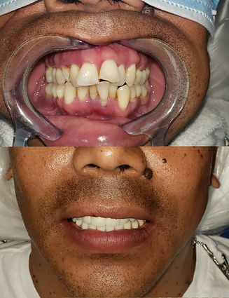 Full mouth dental implants all on four all on six all on one Full dental implant make over $22,000.00 832-705-3321 Houston T.x.