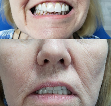 Need a new smile just $22,000 will cover your full mouth
