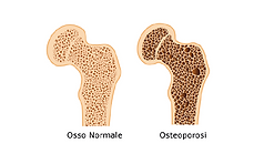 3 giugno osteoporosi_Tavola disegno 1.pn