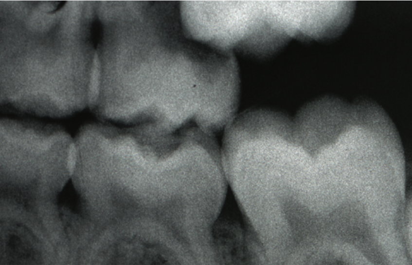 Éruption de la première molaire permanente dans la mauvaise position. L'éruption cause la résorption de la deuxième molaire primaire avant son temps.