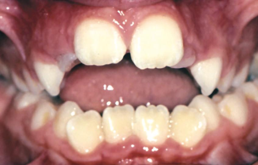 Espace entre les dents du haut et du bas pouvant être causé par la succion du pouce.