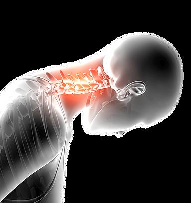 Nackenschmerzen und steifer Nacken