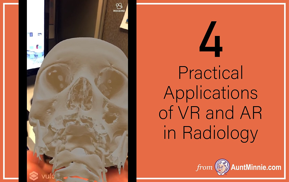 4 Practical Applications of VR and AR in Radiology