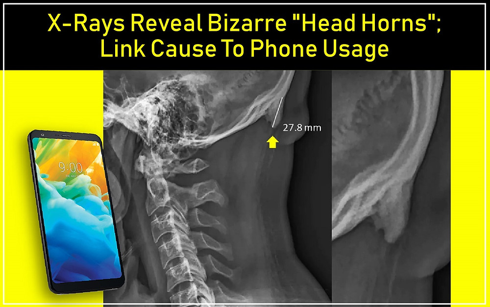 """X-Rays Reveal Bizarre """"Head Horns""""; Link Cause To Phone Usage"""