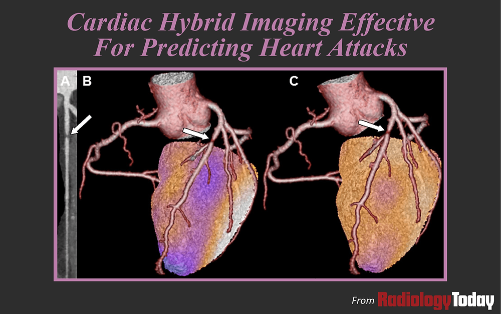 Cardiac Hybrid Imaging Effective for Predicting Heart Attacks